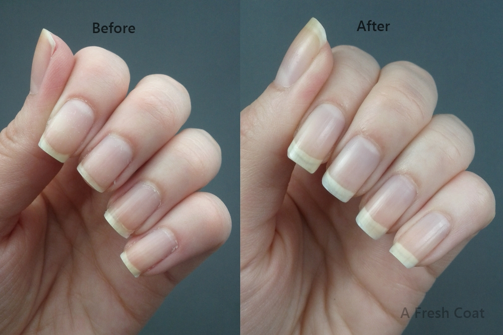 Duri Rejuvacote Before & After
